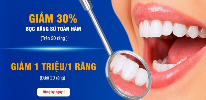 giảm 30% bọc răng sứ