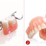 Viêm lợi chảy máu chân răng chữa bằng cách nào