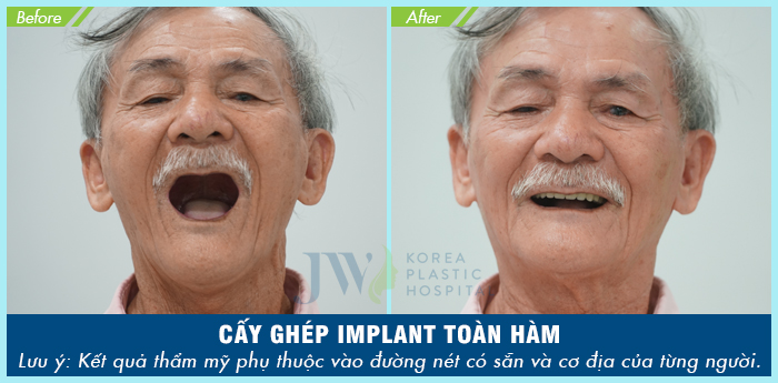Hình ảnh khách hàng thực hiện phương pháp cấy ghép Implant tại JW