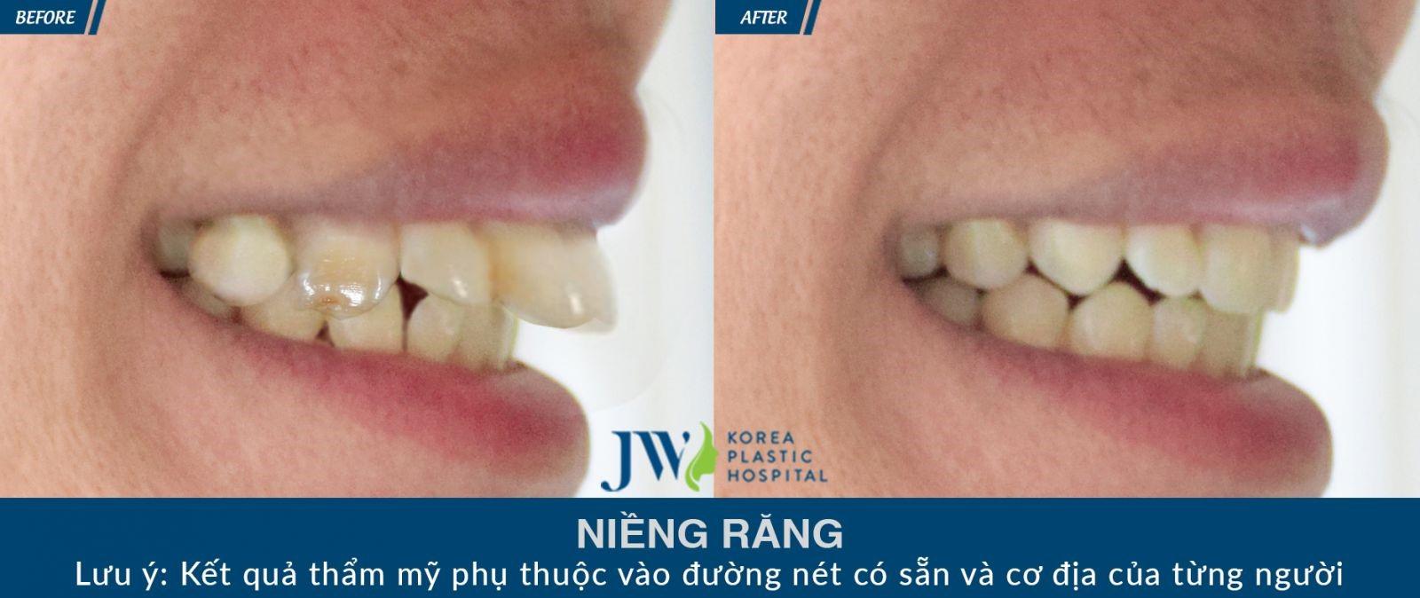 Khách hàng rất hài lòng khi hoàn tất quá trình niềng răng tại JW