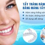 Tẩy trắng răng bằng máng tại nhà với những ưu điểm vượt bật