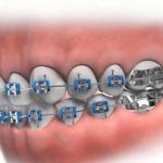 Giải pháp để niềng răng không đau bạn cần biết