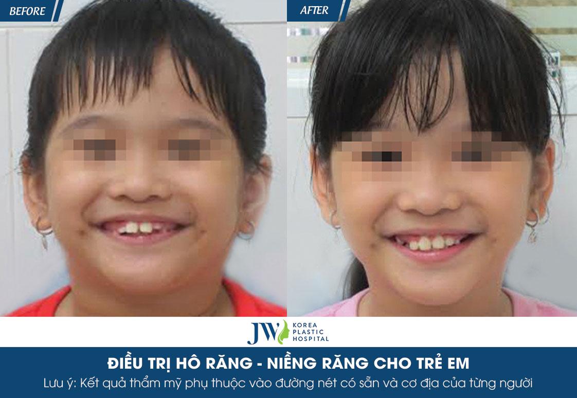 hình ảnh nha khoa trẻ em