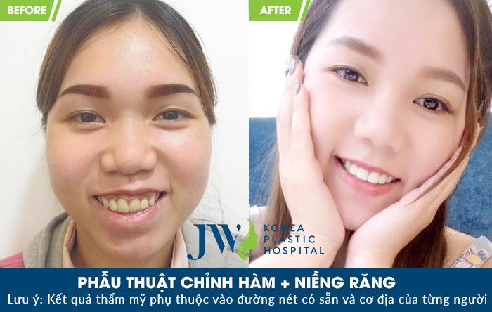 phẫu thuật chỉnh hàm
