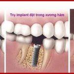 Quy trình cấy ghép Implant được thực hiện như thế nào