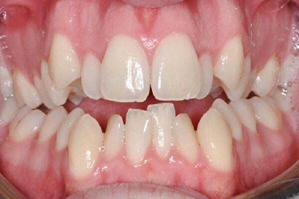 Răng mọc chen lấn nhau gây mất thẩm mỹ cho cung hàm