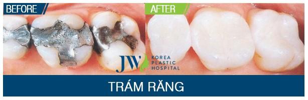 Trám răng thẩm mỹ cho trường hợp răng sâu của khách hàng tại JW