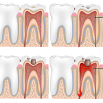 Nội nha chữa tủy răng – Giải Pháp Để Giữ Lại Răng Thật