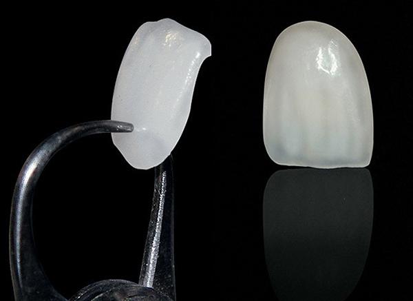 Mặt giá sứ Veneer là gì - giải pháp nhanh cho răng hàm khuyết điểm