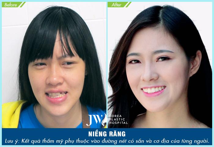 Khách hàng thay đổi bất ngờ sau khi thực hiện niềng răng chỉnh nha tại JW