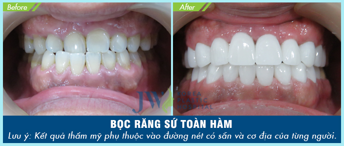 Hình ảnh khách hàng sau khi được bọc răng sứ thẩm mỹ tại JW