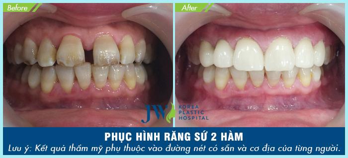 Bọc răng sứ cho trường hợp bị thưa và xĩn màu nặng