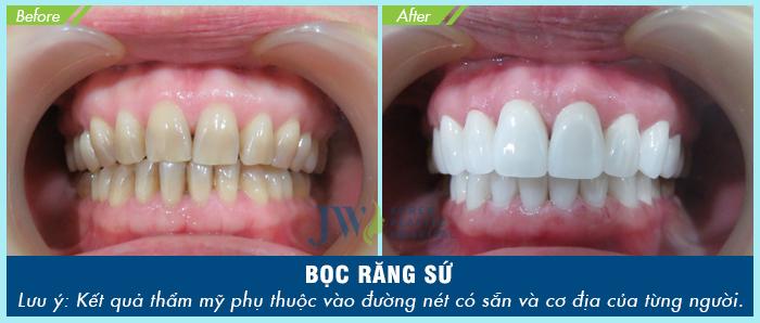 Hình ảnh khách hàng thực hiện bọc răng sứ đối với trường hợp răng ố vàng nhưng bị nhạy cảm