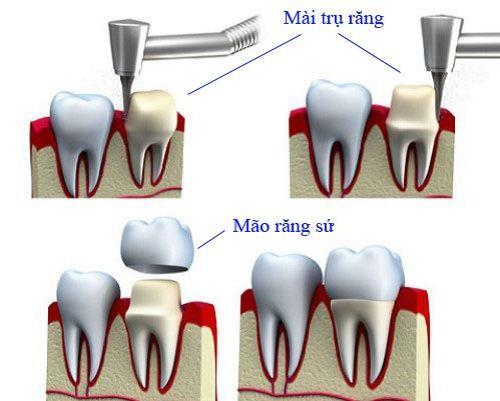Bọc răng sứ giúp khắc phục khiếm khuyết của răng trên cung hàm