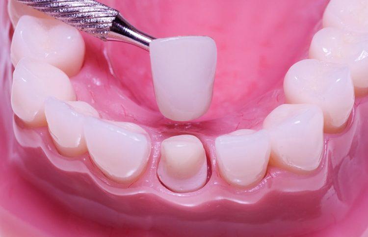 Bọc răng sứ khắc phục được tình trạng răng mắc khuyết điểm trên cung hàm