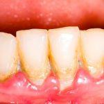 Tìm hiểu về việc lấy cao răng có ảnh hưởng gì không?