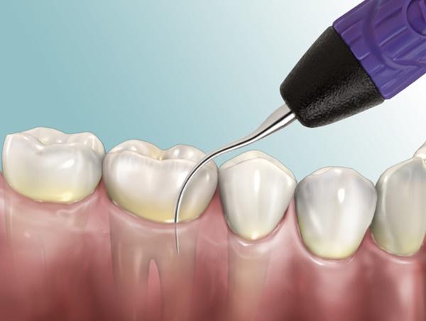 Cạo vôi răng giúp loại bỏ mảng bám trên răng khiến răng trắng sáng hơn