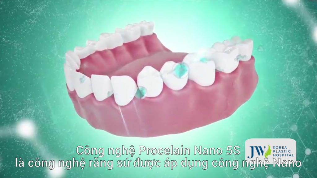 Công nghệ Porcelain Nano 5S – công nghệ làm răng sứ hàng đầu Việt Nam