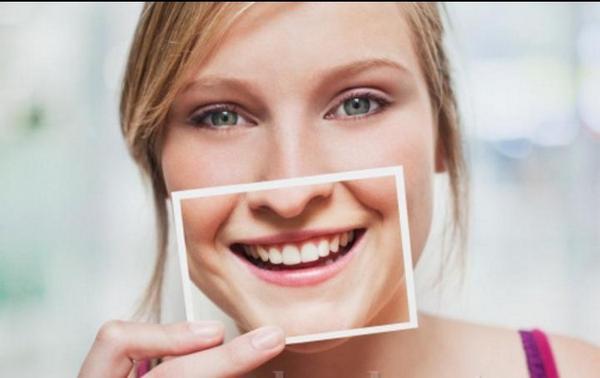có nên bọc răng sứ bị mẻ hay không?