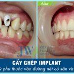 Cách tẩy trắng răng an toàn được thực hiện ở đâu