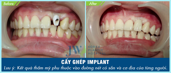 Khách hàng phục hình răng thẩm mỹ bằng phương pháp cấy ghép Implant