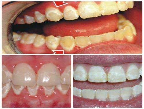 Thuốc tẩy trắng nếu để dây ra mô mềm có thể xảy ra gây bỏng, rát cục bộ cho cả răng và nướu