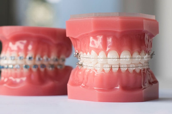 chi phí niềng răng mắc cài kim loại tự buộc giá bao nhiêu?