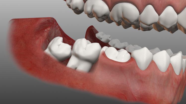 Răng khôn có nên nhổ không?