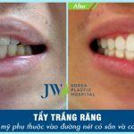 Nhổ răng khôn hết bao nhiêu tiền và có hưởng đến sức khỏe không