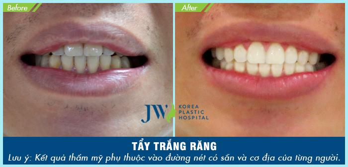 Thực hiện tẩy trắng răng tại JW đem đến kết quả như mong đợi chỉ sau một lần thực hiện