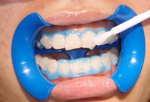 Tẩy trắng răng nhiều lần rất dễ khiến răng bị tổn thương