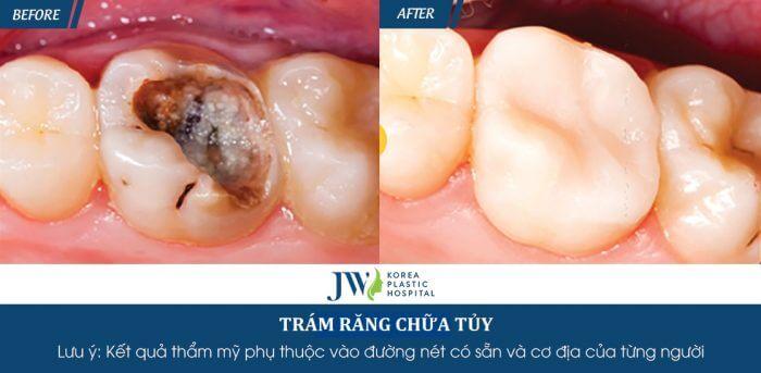 Trước và sau khi chữa tủy răng(nội nha) tại JW