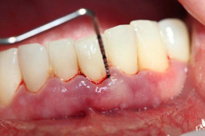 Viêm lợi, viêm chân răng và những vấn đề về răng khác đều rất dễ gặp phải nếu như không chăm sóc răng miệng đúng cách