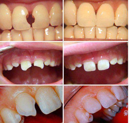 Cấu trúc răng sẽ bị phá vỡ nếu như tủy bị viêm nặng