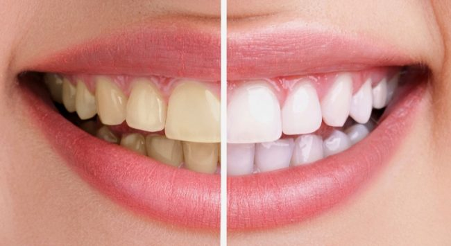Nhiều ưu đãi đặc biệt cho khách hàng khi tẩy trắng răng tại Nha khoa JW