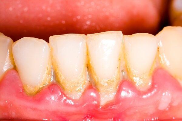 Cao răng bám trên răng gây ra nhiều tác hại cho răng miệng