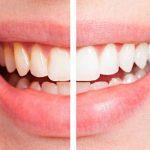 Làm trắng răng tại nhà với những cách đơn giản hiệu quả