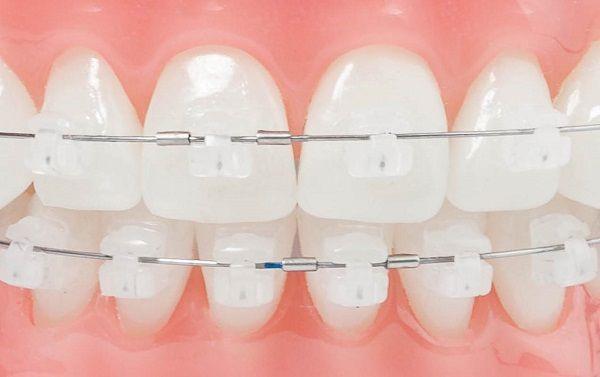 niềng răng mắc cài sứ nano