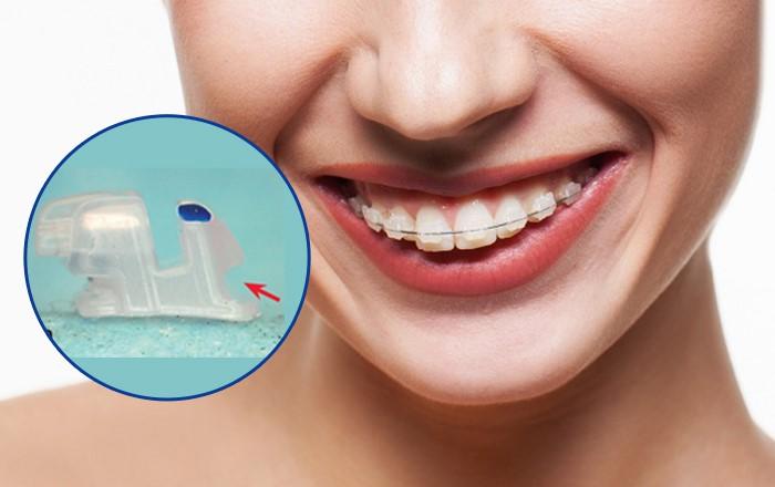 Niềng răng mắc cài sứ Nano được thiết kế với mắc cài bằng sứ nên đem lại tính thẩm mỹ cao