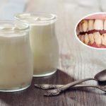 Lấy cao răng có lợi hay hại nếu thực hiện với sữa chua?