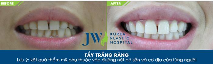 Hình ảnh khách hàng thực hiện tẩy trắng răng tại JW