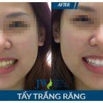 Nhổ răng khôn hàm trên có nguy hiểm gì không