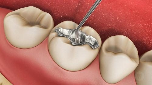 Hàn trám hoặc bọc răng sứ nếu răng sâu ở mức độ nhẹ