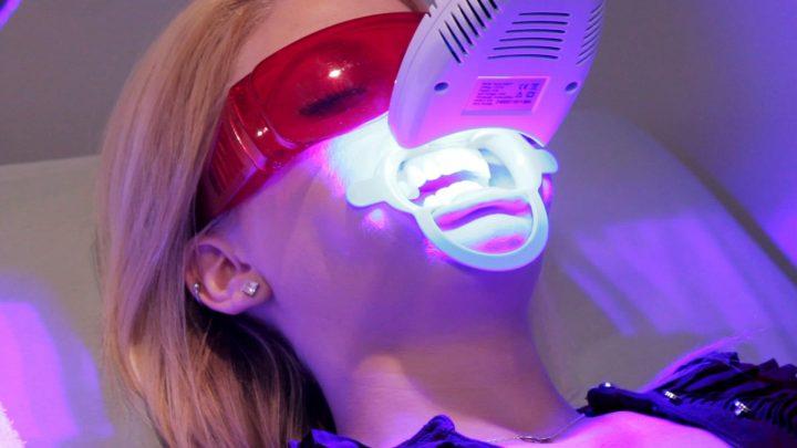 Nhờ vào bước sóng Laser kích hoạt thuốc tẩy trắng giúp bạn nhanh chóng sỡ hữu hàm răng trắng đẹp