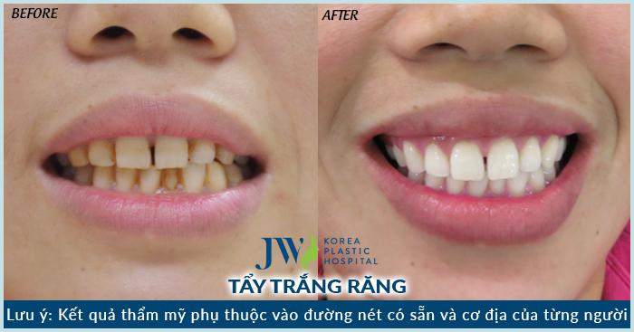 Răng trắng sao chỉ sau một lần thực hiện tẩy trắng với công nghệ Laser Whitening