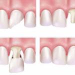 Ưu và nhược điểm của trồng răng sứ như thế nào