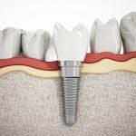 Cấy Ghép Xương Trong Implant Được Thực Hiện Như Thế Nào?