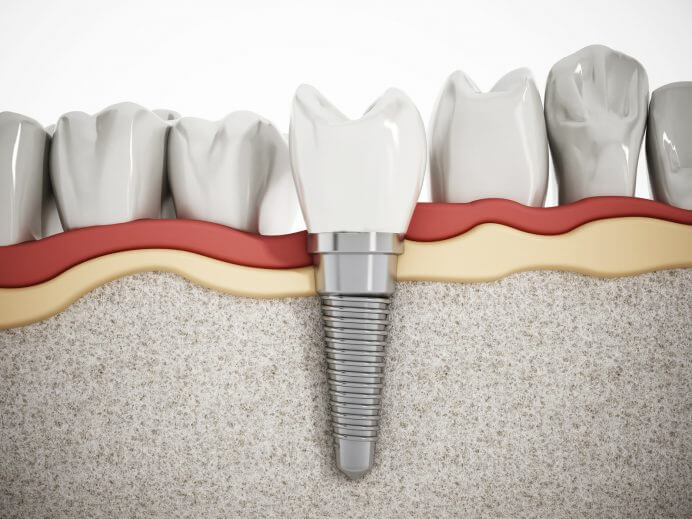 cấy ghép răng implant, cấy ghép implant, cay ghep implant