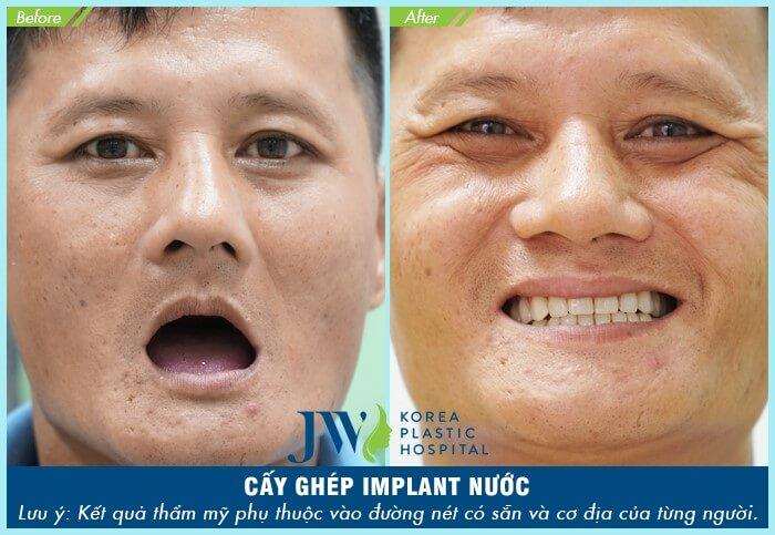 khách hàng cấy ghép implant nước