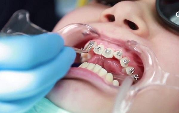 So sánh niềng răng mắc cài kim loại và niềng răng mắc cài sứ